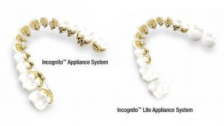 Lingual brackets (Incognito 3M Unitek)